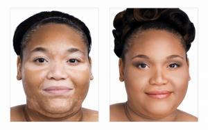 obat bercak putih vitiligo